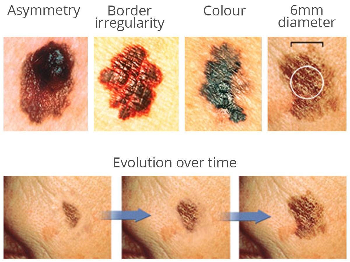 Skin Checks